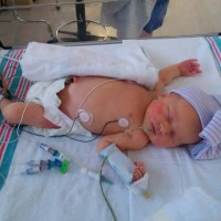 Post NICU Baby in Need